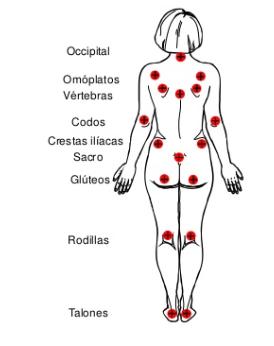Zonas más comunes de las Ulceras Por Presión y su tratamiento