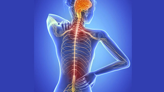 Qué es la Esclerosis Múltiple - EM