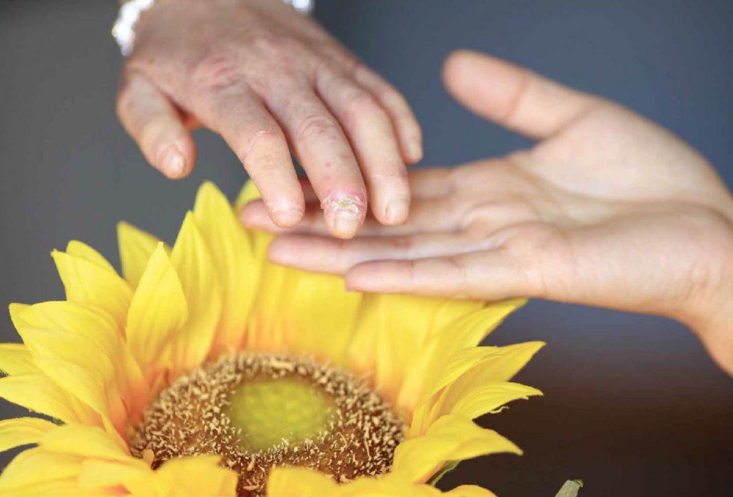 Día Mundial de la Esclerodermia