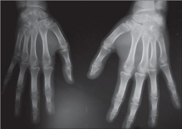 Síndrome de Klippel-Trenaunay