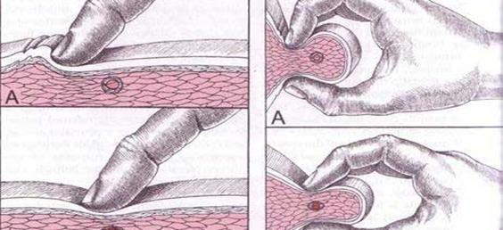 Influencia de la liberación de puntos gatillo miofasciales (PGM) en el tratamiento de cefaleas tensionales
