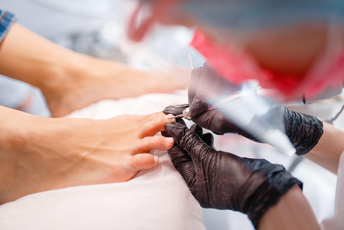 Patologías dermatológicas más comunes de los pies 🦶 - Uñas